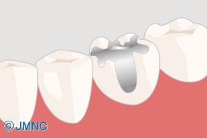 銀歯が気になる・白く自然な前歯にしたい