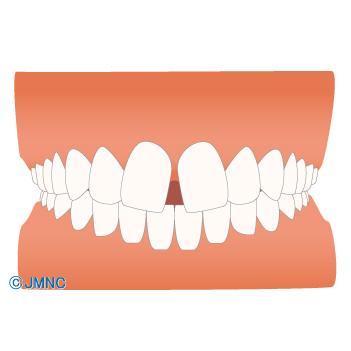 すきっ歯・前歯のねじれを改善したい