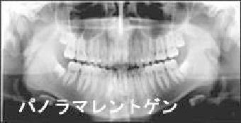 ・パノラマレントゲン撮影