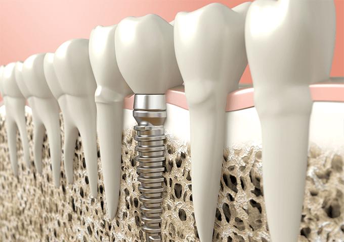第二の永久歯と呼ばれる、インプラント
