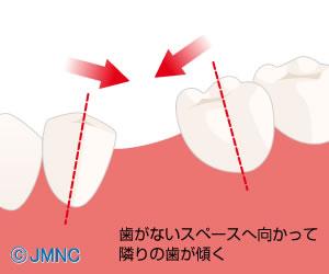隣の歯が、横に倒れてきてしまいます