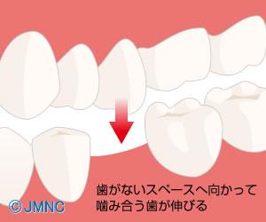 歯がない部分と噛み合う部分