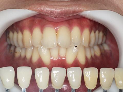 お口の状態の確認・歯の色合わせ