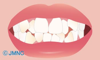 不揃いな歯の形をなんとかしたい