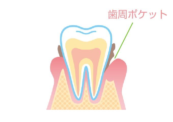 歯を失う原因No.1